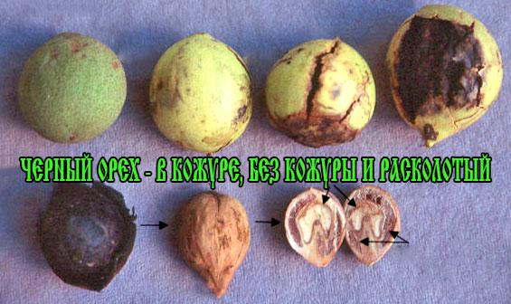 черный орех применение отзывы от паразитов